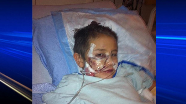 The little boy recovers at Alberta Children's Hospital.
