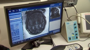 Concussion study puts spotlight on spine to speed healing