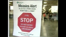 Two new cases measles connected to #yyc high school