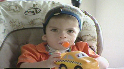 Diego Van Der Penner was born with Goldenhar Syndrome, a condition that affects the development of his face.