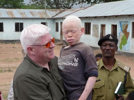 Peter Hunt and albino child